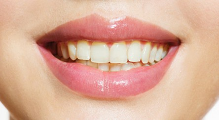 Ask us about whitening services